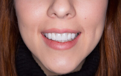 Thinking about teeth whitening? Here's a useful fact sheet written by the ADA
